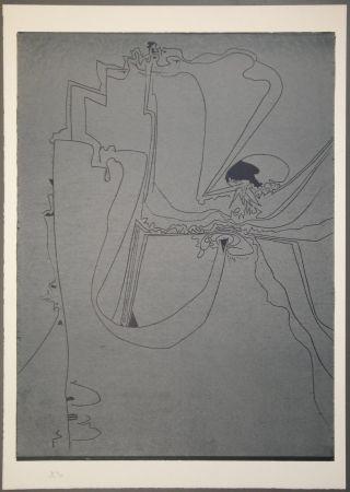 木版 Müller - Un dito